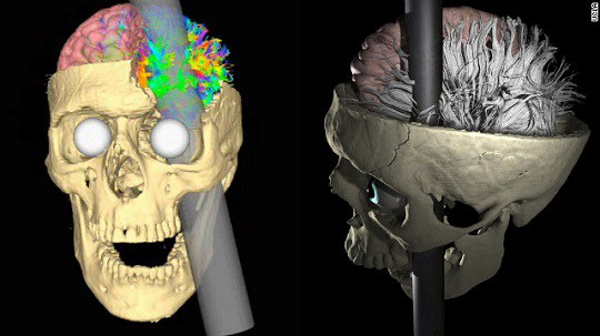 Phineas-gage-rod-skull-model-story